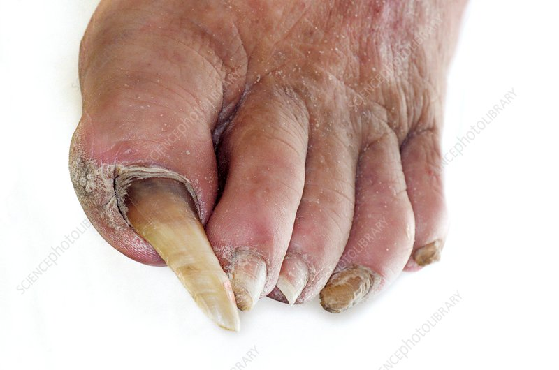 Overgrown toenail  hypertrophy Unhealthy Toenails