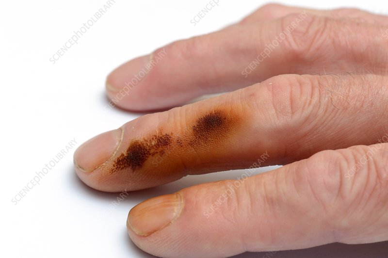 Nicotine stained finger