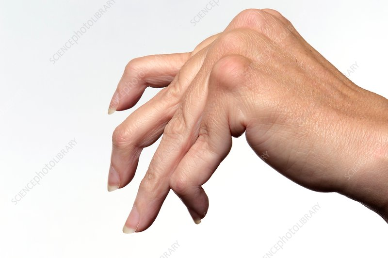 Rheumatoid arthritis of the fingers