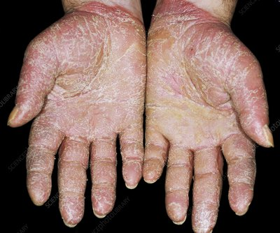 Psoriasis on the palms of the hands