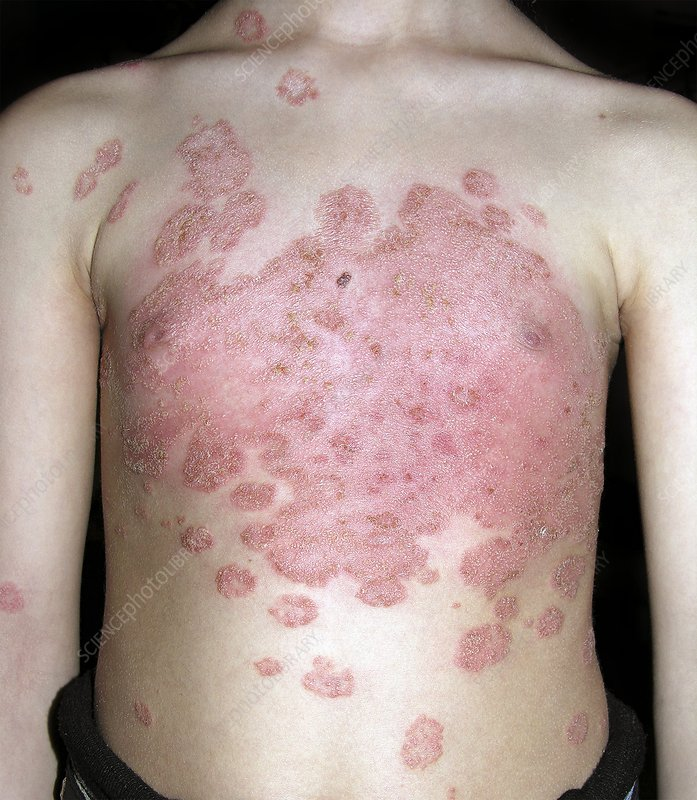 Tinea fungal infection on the body