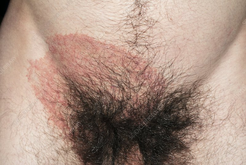 Ringworm fungus on the groin