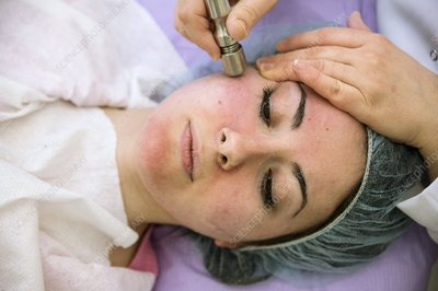 Microdermabrasion beauty treatment