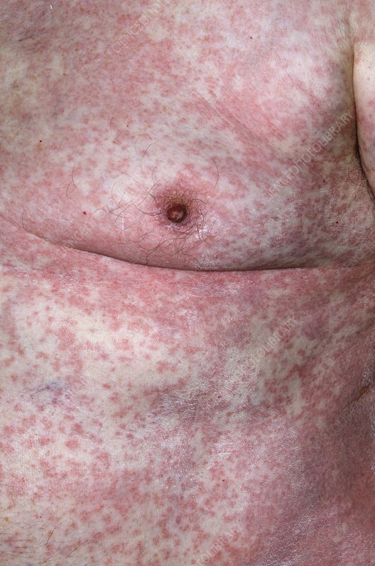 Allergic skin reaction to clopidogrel