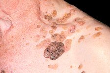 Seborrhoeic warts on the skin