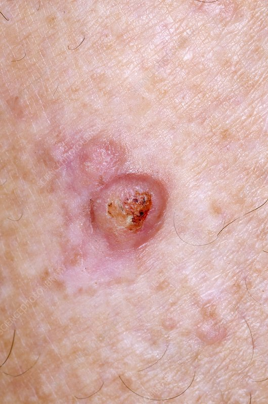 Nodular prurigo on the skin