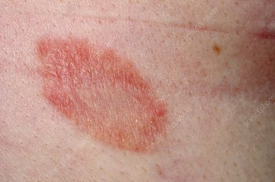 Herald patch in pityriasis rosea