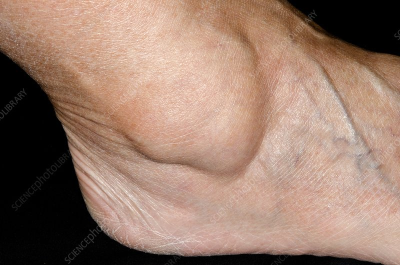 Ganglion over the ankle