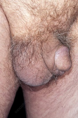Scrotal bruise after hernia surgery