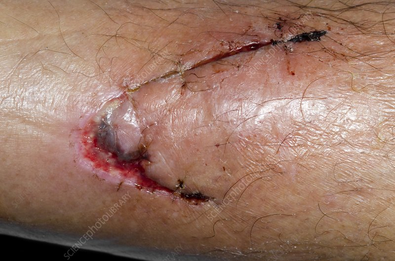 Infected laceration of the shin