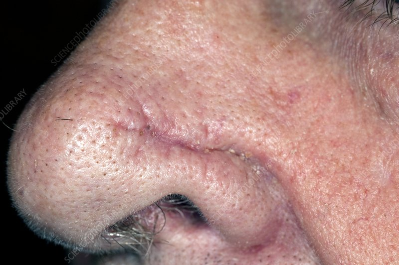 Nose Scar After Skin Cancer Removal Stock Image C014 2801 Science Photo Library