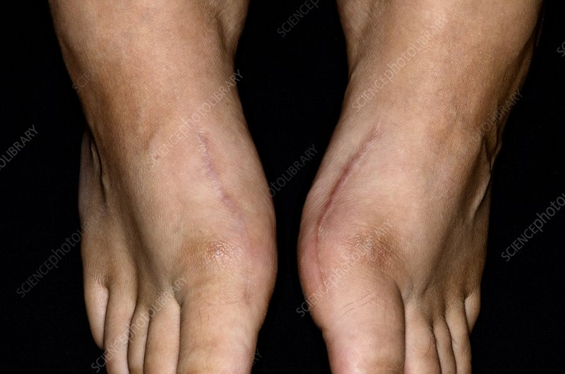 Scars from bunion surgery