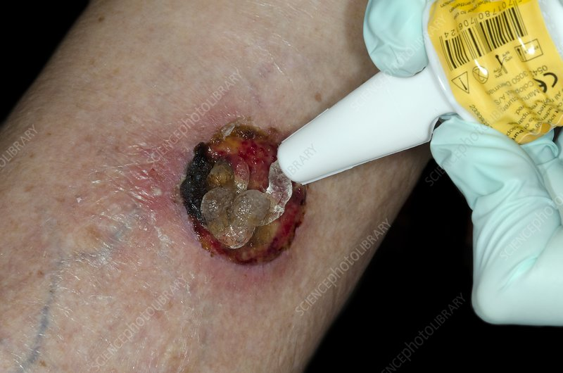 Wound after skin cancer removal