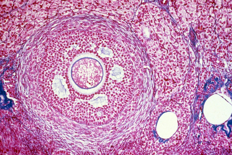 LM of Graafian Follicle