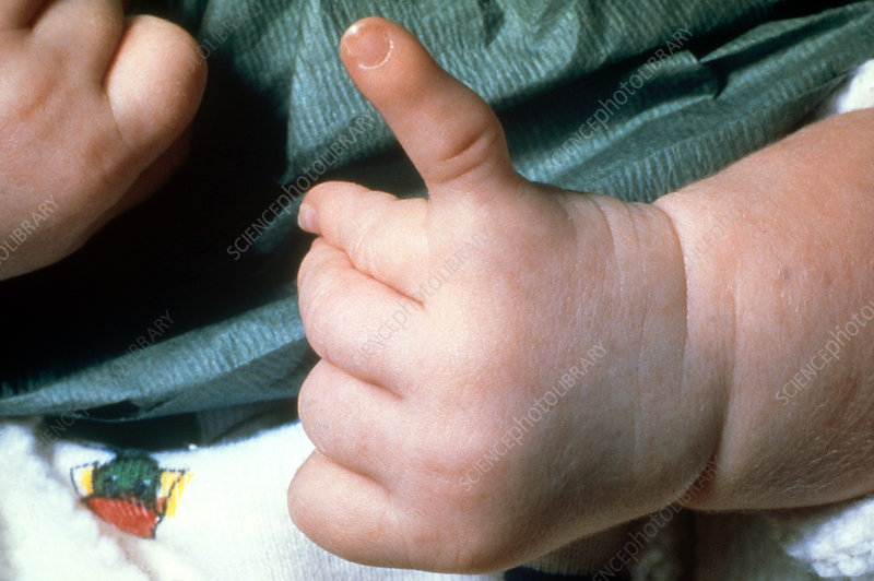 Hand with Birth Defect