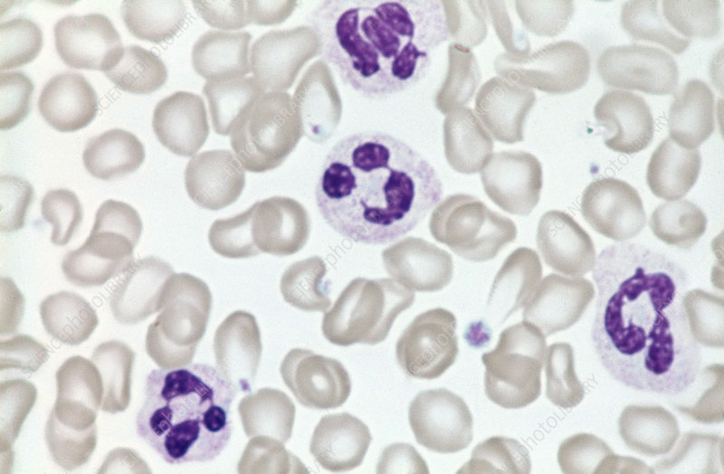 Neutrophils and Red Blood Cells (LM)