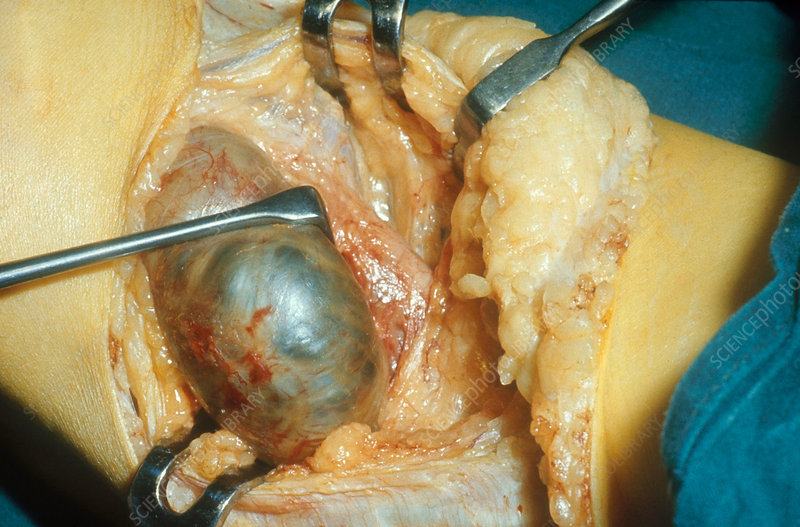 Knee, Lateral Popliteal Cyst