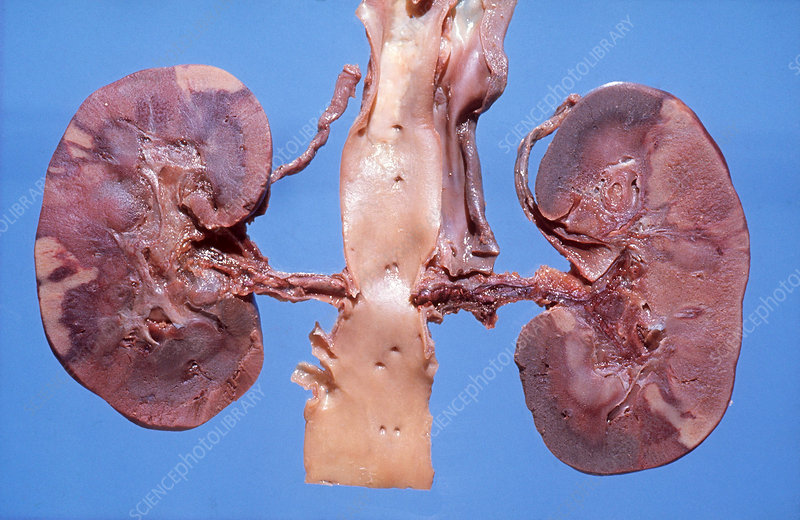 Polycystic Disease of Kidneys