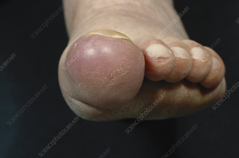 Metastatic Cancer in Big Toe