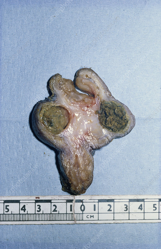 Diverticulum of Small Intestine