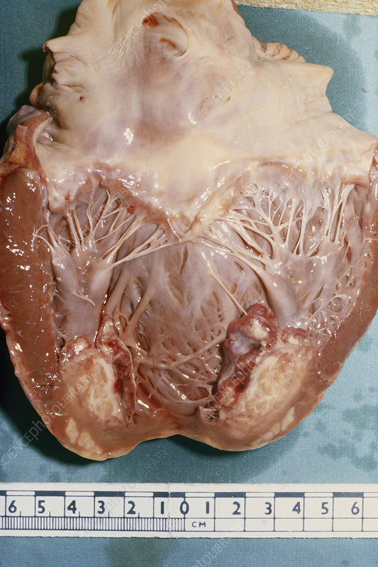 Secondary Heart Cancer
