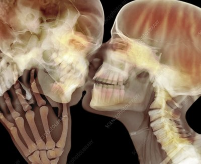 Lovers kissing, X-ray