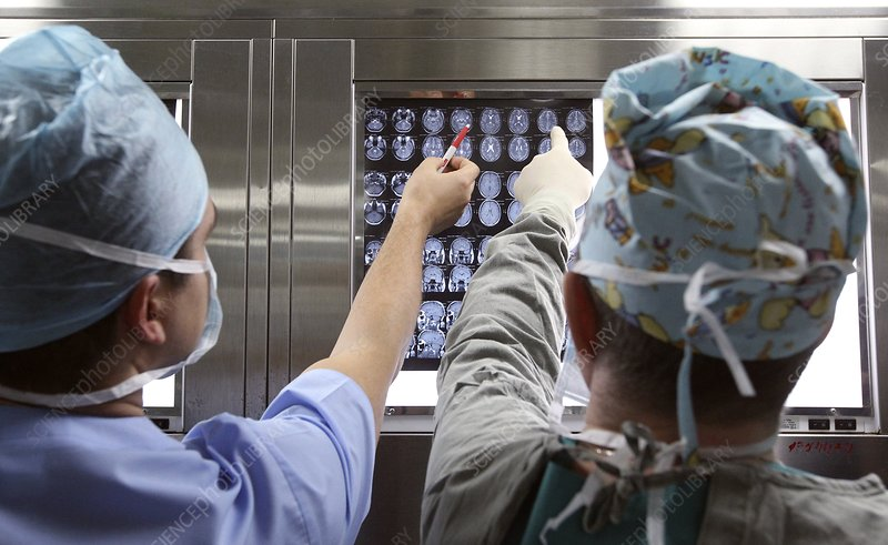 Surgeons looking at brain scans