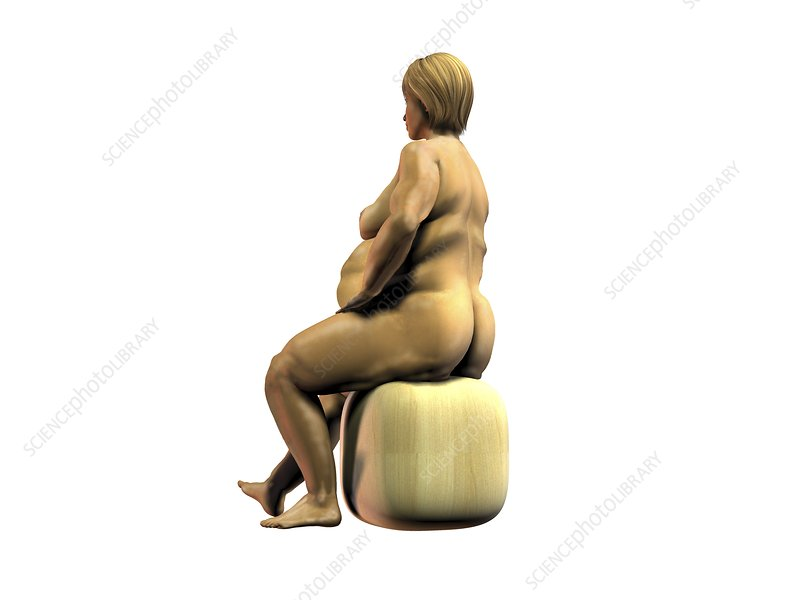 Obese woman, artwork