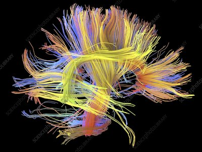 White matter fibres of the human brain