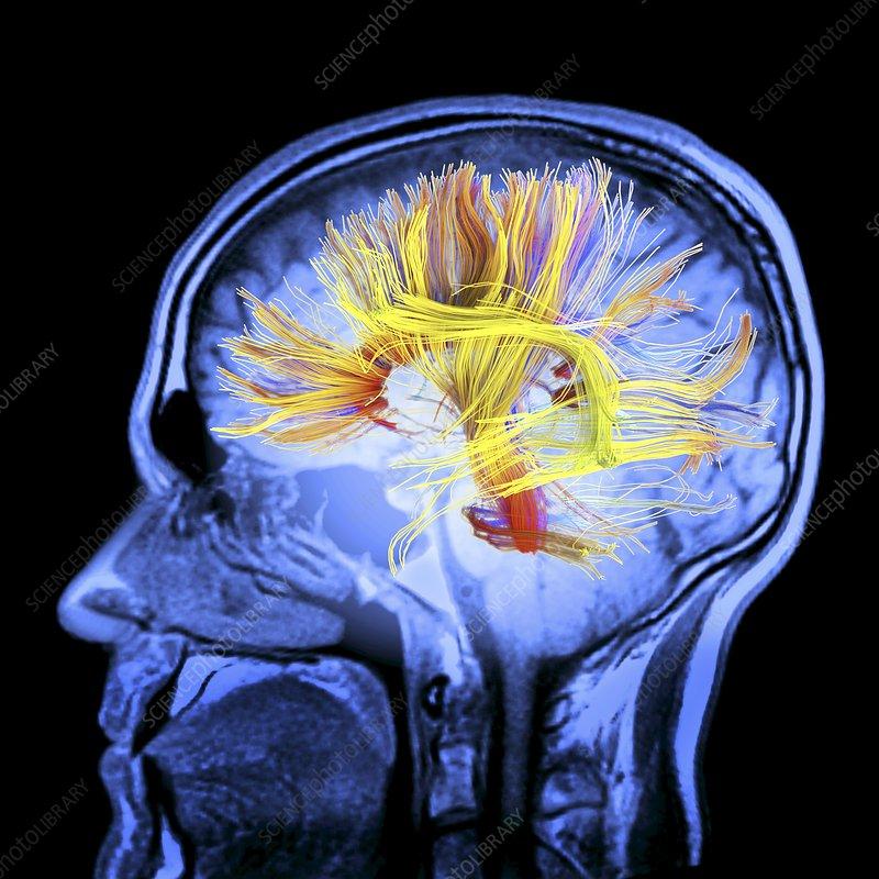 White matter fibres, brain mri scan