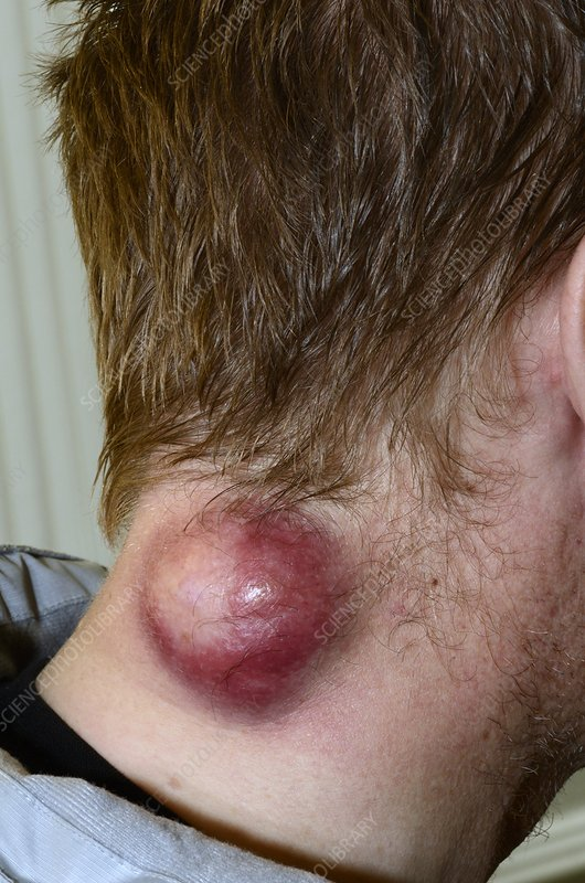Infected cyst on a patient's neck - Stock Image C014/5888 ...