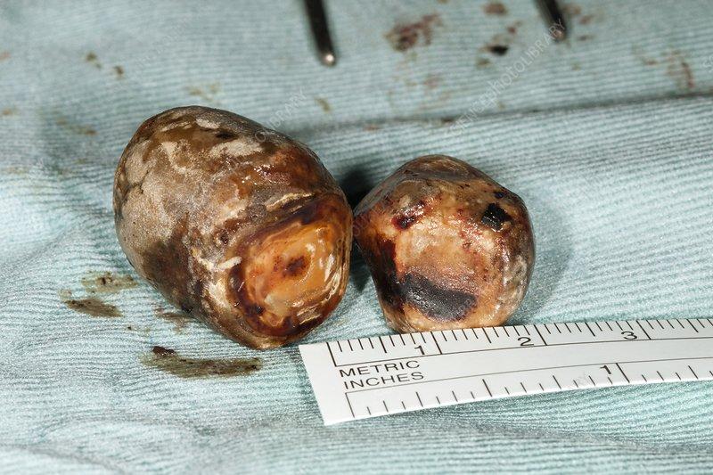 Excised gallstones