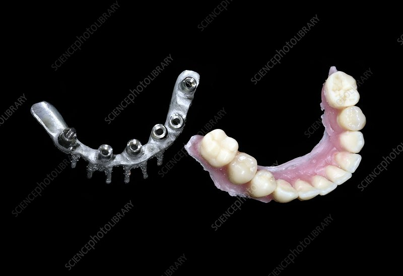 Dental prosthesis production