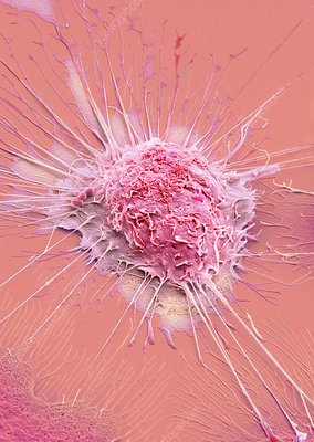 Mouth cancer cell, SEM