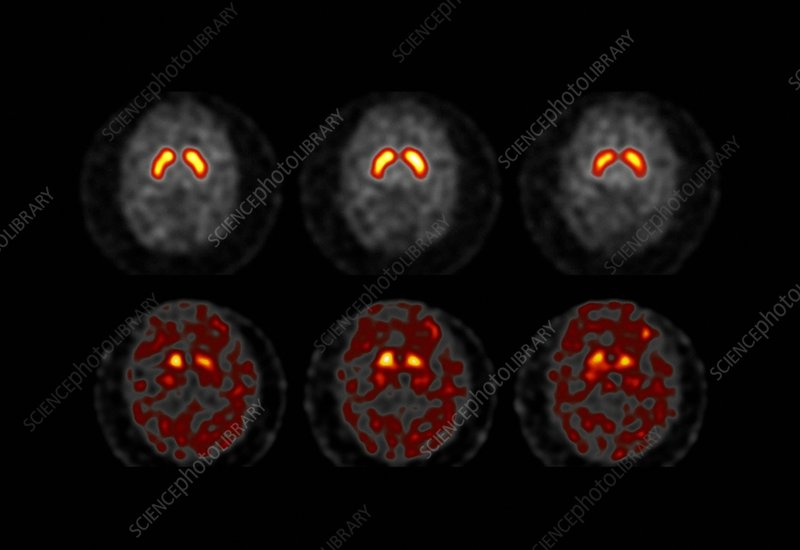 Brain activity in Parkinson's disease