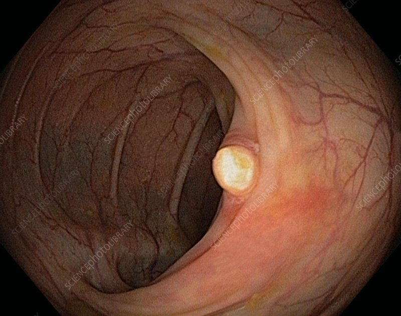 Colon polyp removal