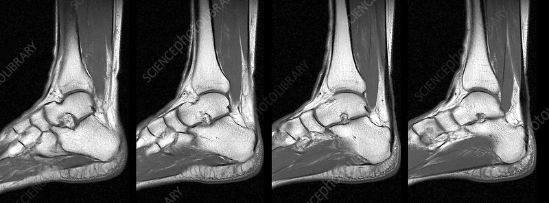 Normal ankle, MRI scans