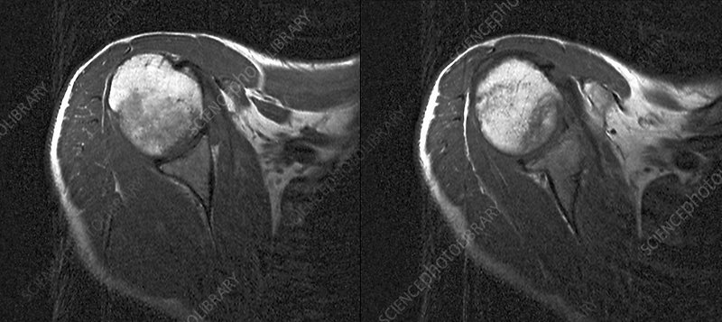 Complex regional pain syndrome, MRI