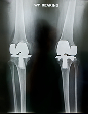 Artificial knee joints in obesity, X-ray