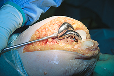 Knee replacement surgery, obese patient