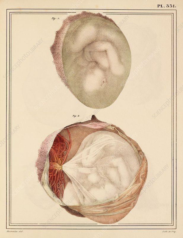 Comparing two foetuses, 1825 artwork