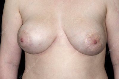 Tuberous breasts after surgery abnormalit