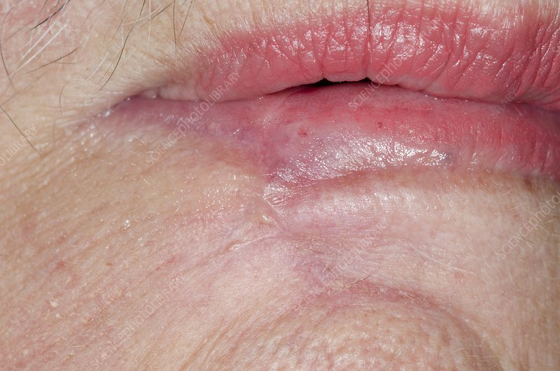 Excised Skin Cancer Of The Lip Stock Image C014 7968 Science Photo Library