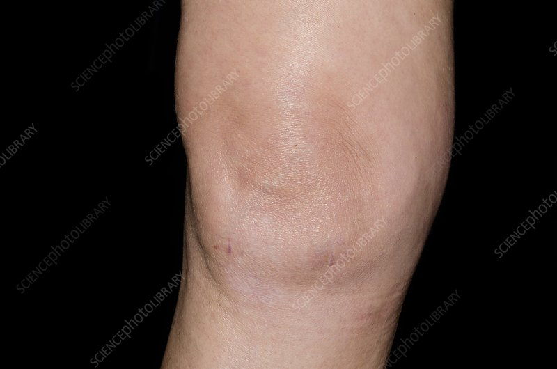 Effusion of the knee after surgery