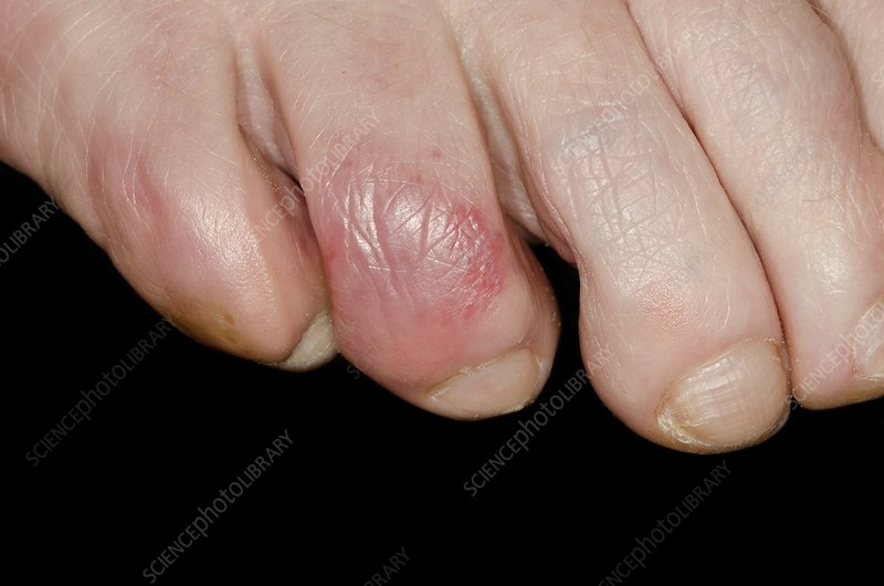 Chilblains on the toe