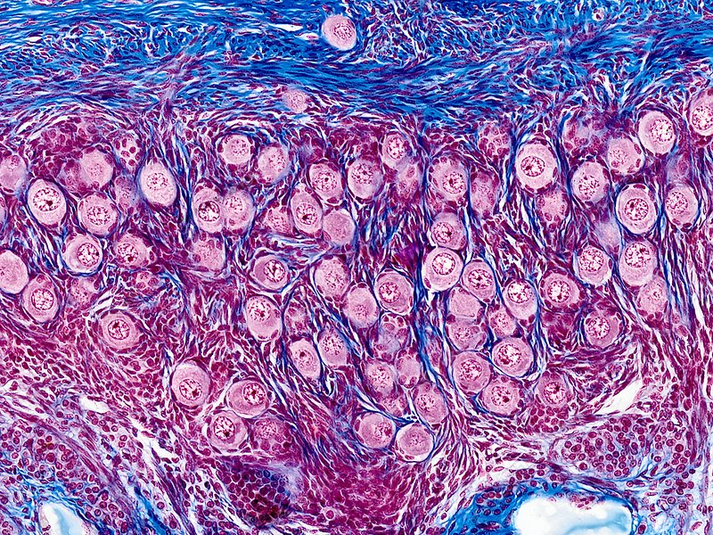 Ovarian follicles, light micrograph