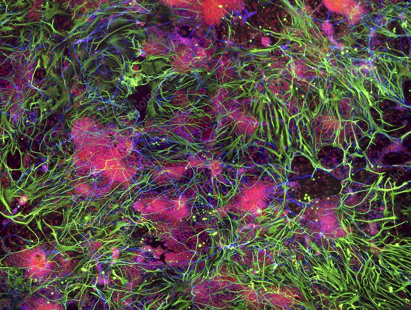 Stem cell-derived nerve cells