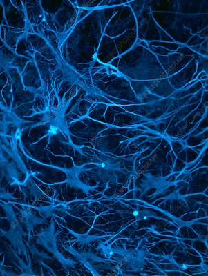neural stem cells and induced neurons nerve injury repair Peripheral nerve injury neural stem cells (nscs)  be indicative of the enhanced nerve repair of stem cell transplantation  motor neurons differentiating from .