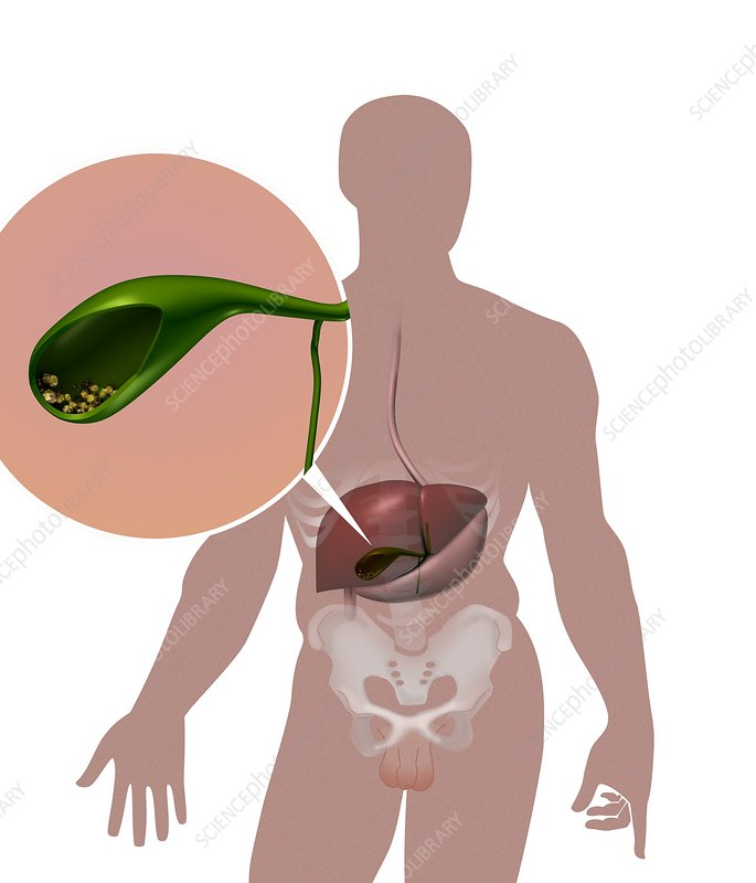 diet for after gallbladder removal through mouth