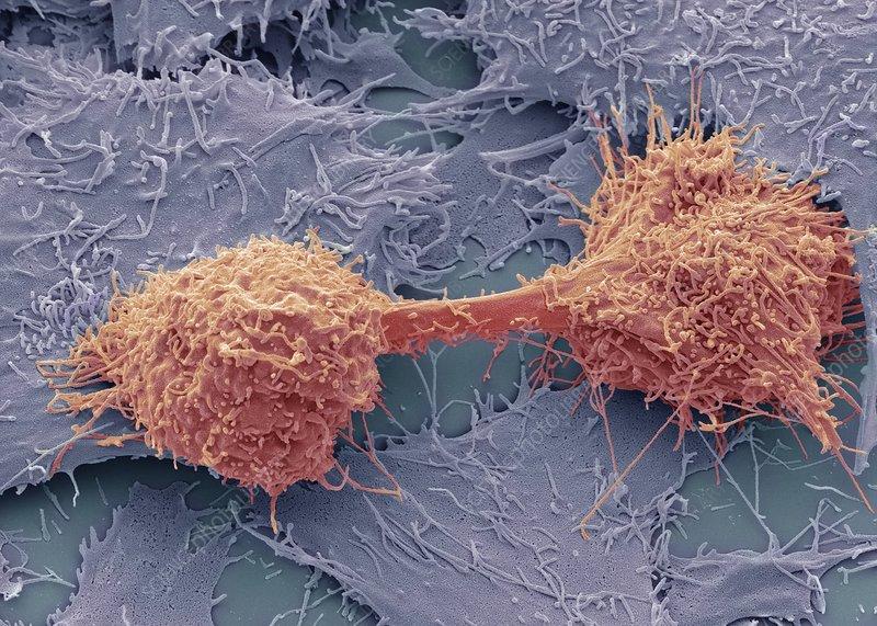 Spindle Cell Liver Cancer
